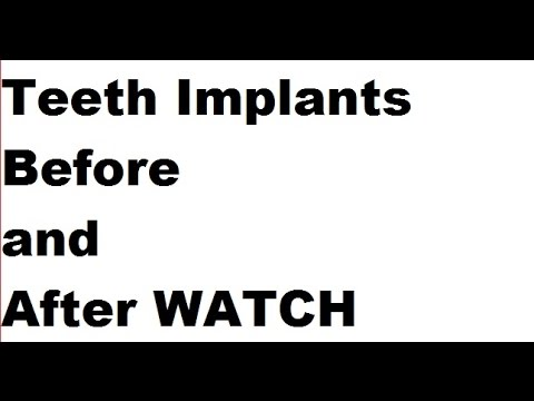 Teeth Implants Before and After - Dental Implants - A WARNING