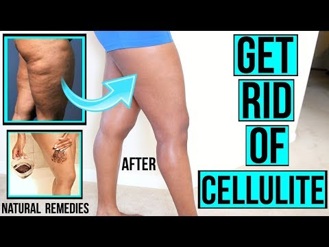 HOW TO GET RID OF CELLULITE FAST & NATURALLY + DIY AT HOME SCRUBS & MIXES