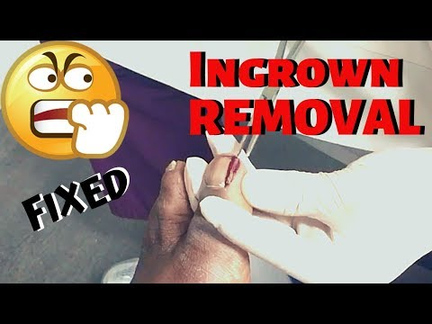 Dr. Kim shows how to treat an ingrown nail in the hospital