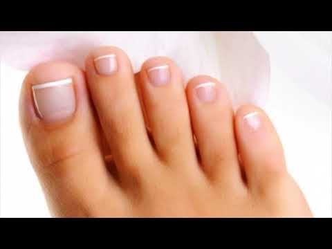 Effective Remedy For Toe Nail Fungus Is Vinegar- How To Use