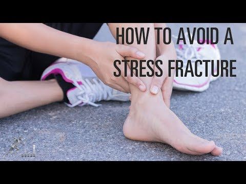 Tips to avoid a stress fracture