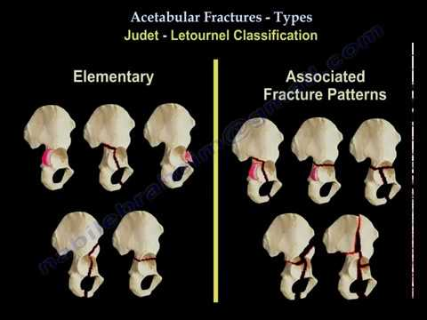Acetabulum Fracture Types  - Everything You Need To Know - Dr. Nabil Ebraheim