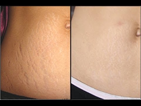 Get Rid Of Stretch Marks Naturally
