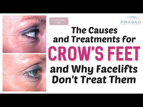The Causes of Crow's Feet and its Treatment, and Why Facelifts Don't Address Them