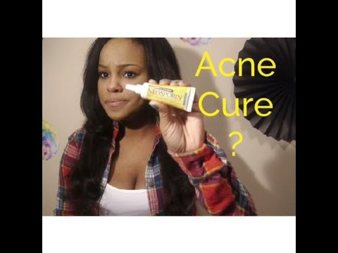 Does Neosporin cure acne overnight? Or Nah?