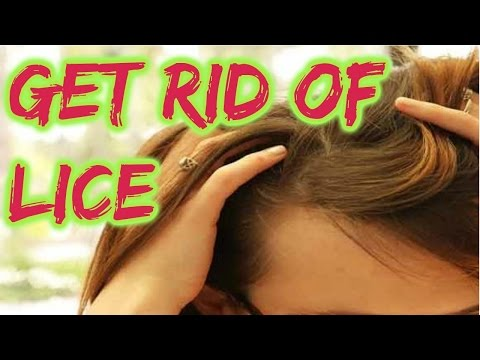 How to Get Rid of Head Lice Permanently | Head Lice Treatment - Home Remedies for Lice -- HOW TO's