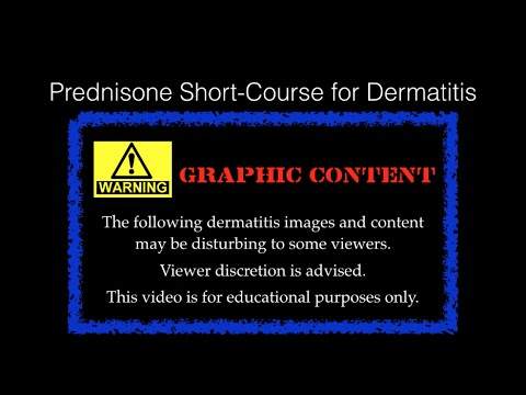 Prednisone Short Course for Bad Contact Dermatitis, transformed from Heat Rash