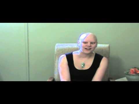 Dominique talks about having Alopecia universalis