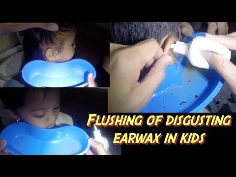 Disgusting Earwax Flushing in Kids