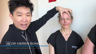 Brow lift with Botox - are you a good candidate?