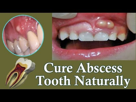Best Treatment For Tooth Abscess -  Cure Your Abscess Naturally At Home