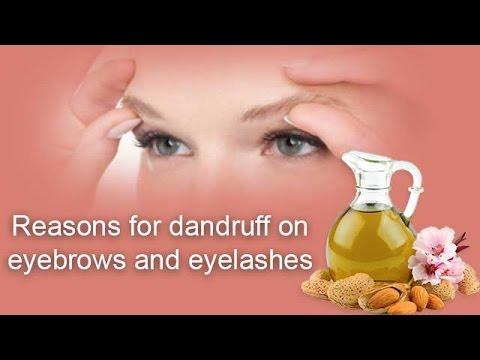 Reasons for dandruff on eyebrows and eyelashes - Onlymyhealth.com