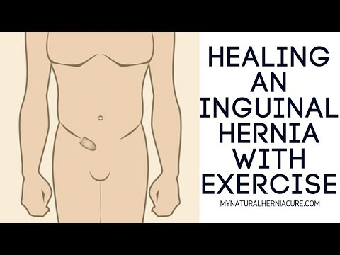 Healing Inguinal Hernia With Exercise  Full Workout