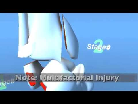 Ankle Fracture - SA Supination ADduction Inversion