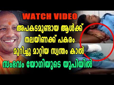 തലയണക്ക് പകരം അറ്റു പോയ കാൽ കൊടുത്ത് ആശുപത്രി അധികൃതർ, സംഭവം UPയിൽ   Oneindia Malayalam