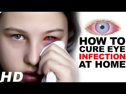 Home Remedies For Pink Eye - Pink Eye Treatment   Eye Infection Cure - Home Remedy For Pink Eye