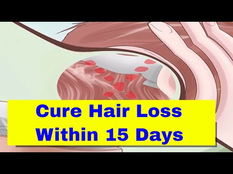 How to Prevent Hair Loss due to Stress Within 2 Weeks