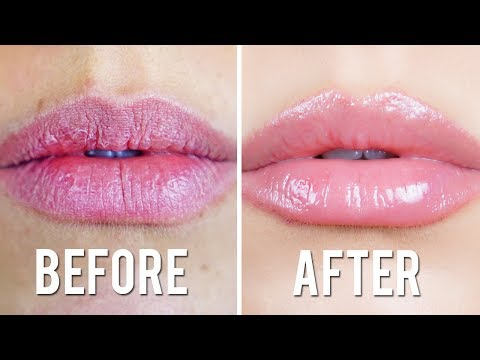 CHAPPED LIPS REMEDY!