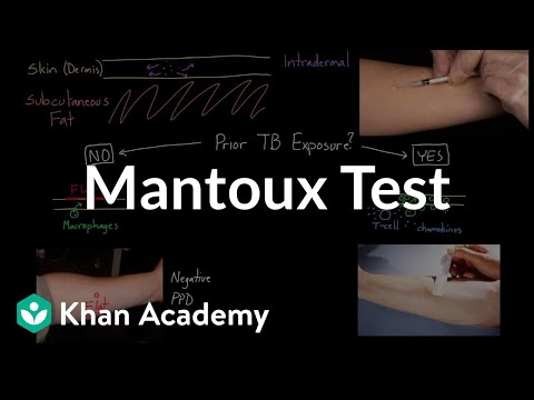 Mantoux test (aka. PPD or TST) | Infectious diseases | NCLEX-RN | Khan Academy