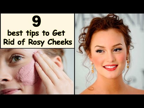How to Get Rid of Rosy Cheeks - rosy cheeks naturally