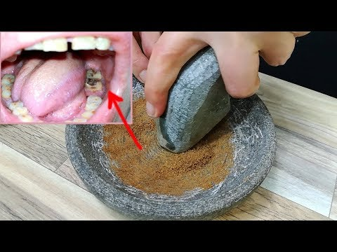 Fast Tooth Pain Relief When My Teeth Hurt! Toothache Immediate Pain Relief!