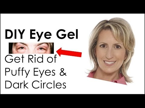DIY Eye Gel to Rid Puffy Eyes and Dark Circles