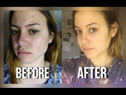 MY ACNE STORY + HOW I GOT RID OF IT