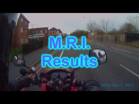 M R I  Results