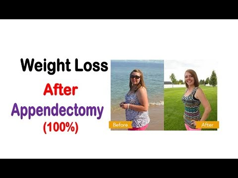 Weight Loss After Appendectomy - How To Lose Weight After Appendix Removal/Surgery
