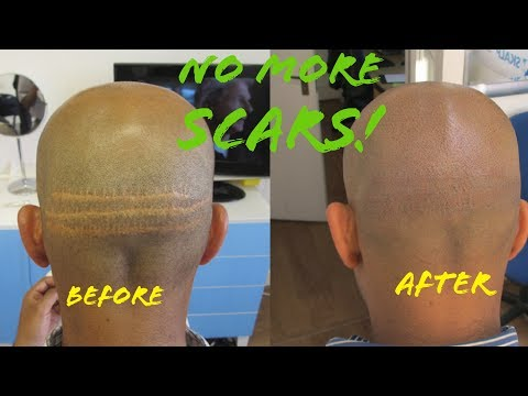 How To Get Rid of Hair Transplant Scars