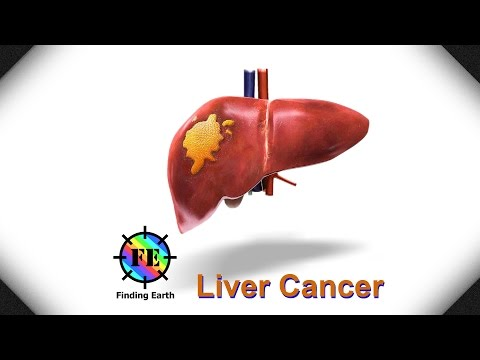 Liver Cancer - Symptom, Causes & Diagnosis (Finding Earth)