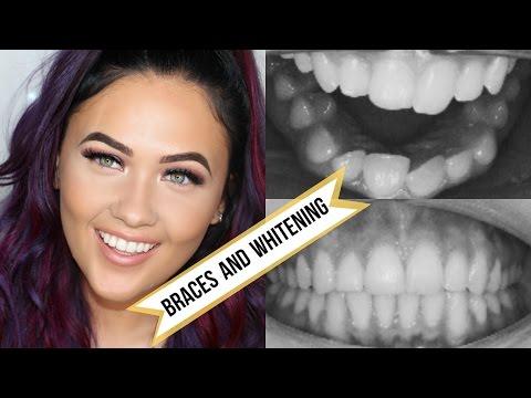 Having Braces And Teeth Whitening | LoveLaughAndVlog