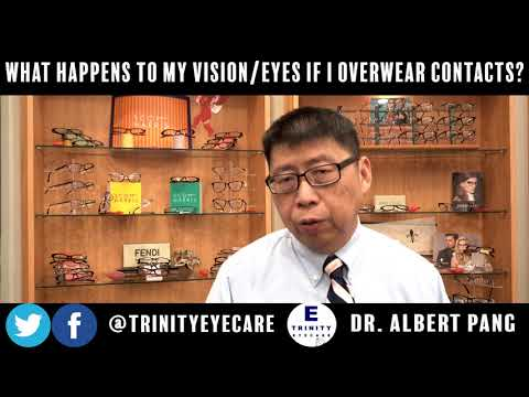 What Happens to My Vision & Eyes if I Overwear My Contacts? | Dr. Pang, Trinity Eye Care