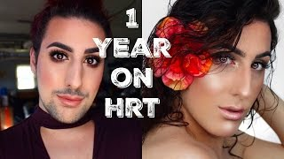 1 year on hrt surgery talk mtf transgender timeline newz