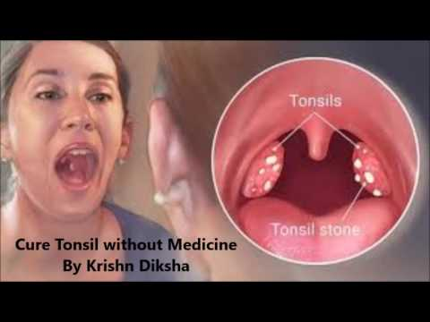 Cure Tonsil without Medicine By Krishn Diksha