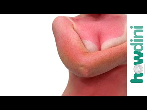 Quick sunburn relief - Sunburn treatment and remedies