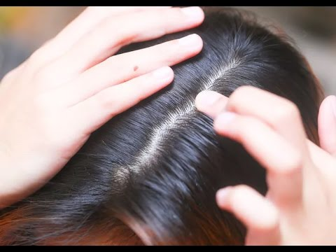 How to Prevent Head Lice - Hair Loss Treatment