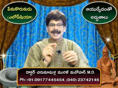 Alopecia | Home Remedies | Telugu | Dr. Murali Manohar Chirumamilla, M.D. (Ayurveda)