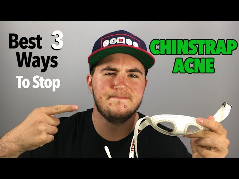 Chinstrap Acne | THE BEST 3 WAYS TO STOP IT