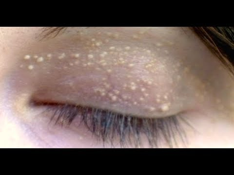 How To Remove Pimples On Eyelids, Home Remedy, Get Rid Of Stye On Eyelid Overnight