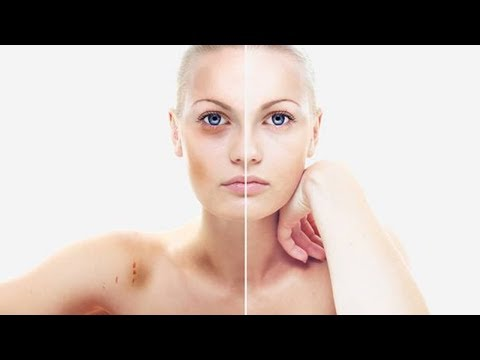 9 Natural Ways to Treat Bruises