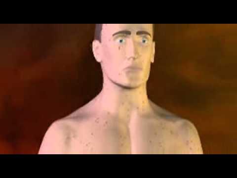 Chickenpox Symptoms of Chickenpox - Chickenpox Vaccine Video - About.com_mpeg4