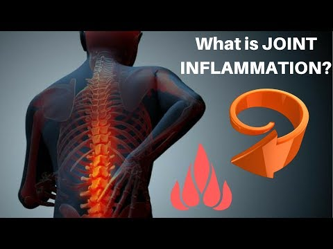 What is Joint Inflammation?