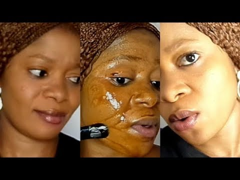 SKIN LIGHTENING TREATMENT REMOVE DEAD SKIN CELLS DARK SPOTS AND DISCOLOURATION