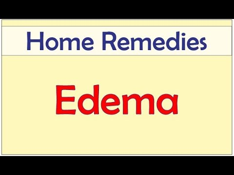 Home Remedies for Edema   Edema   Home Remedies for Edema in Feet and Ankles