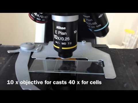 Iphone urine  microscopy