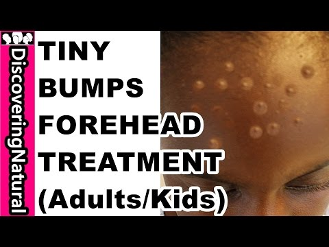 HOW TO GET RID OF TINY BUMPS ON FOREHEAD in 10 DAYS   Acne, Pimple, Rashes I KIDS and ADULTS
