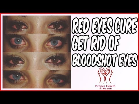 Red Eyes Cure - How to Get Rid of Bloodshot Eyes and Red Eyes Forever - Fix Bloodshot Eyes Naturally
