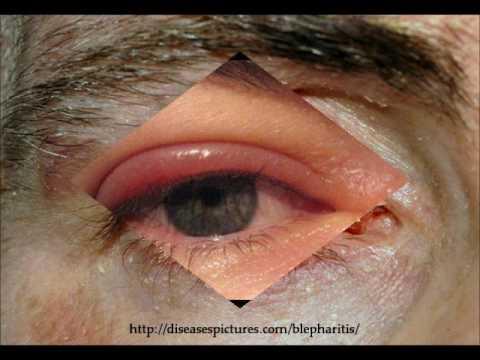 Eyebrow & Eyelash Diseases, Conditions, and Disorders: Crab Lice, Demodex Mites, Alopecia