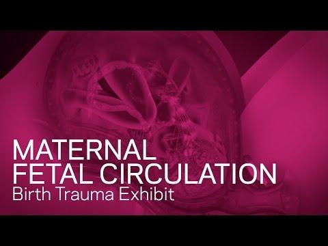 Maternal Fetal Circulation - Birth Trauma Animation